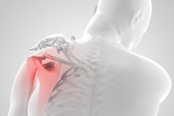 douleur-aux épaules-Ergoskoaz