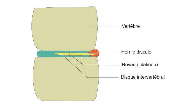Schéma de la hernie discale