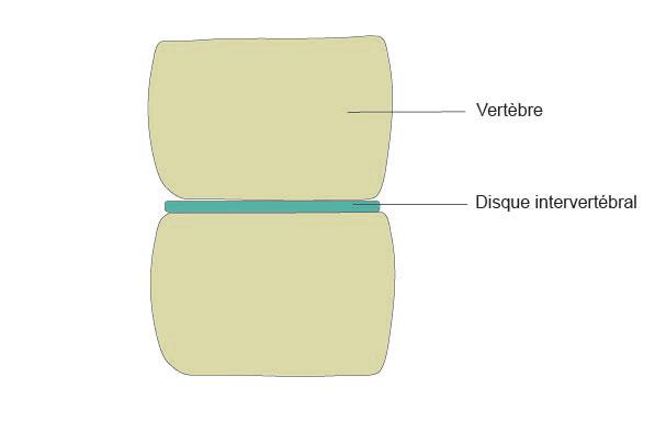 Schéma du tassement vertébrale